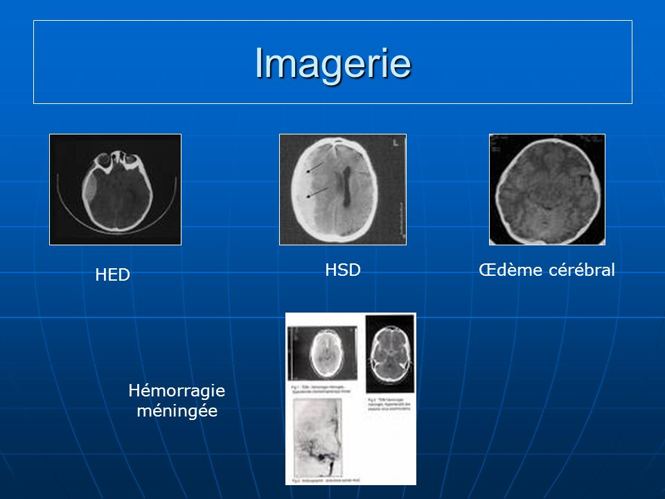 Imagerie HSD Œdème cérébral HED Hémorragie méningée