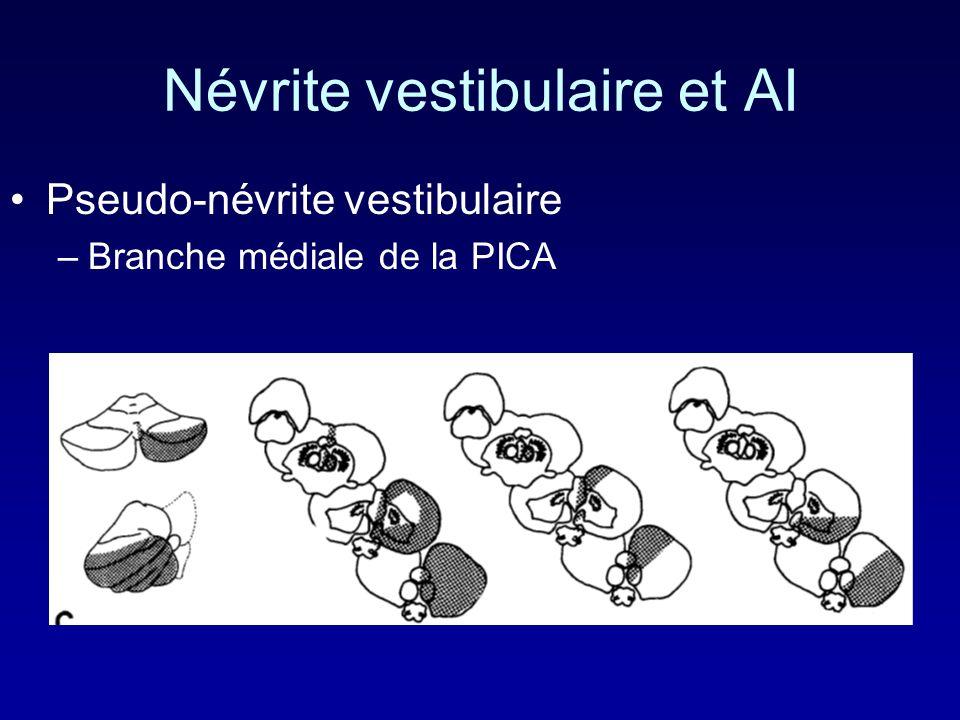 Névrite vestibulaire et AI