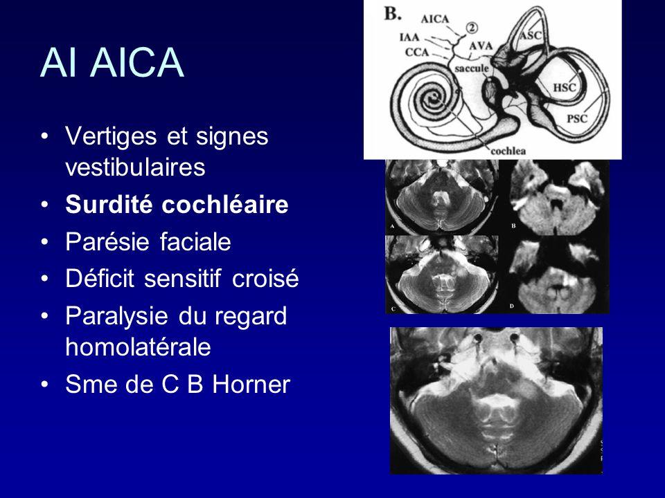 AI AICA Vertiges et signes vestibulaires Surdité cochléaire