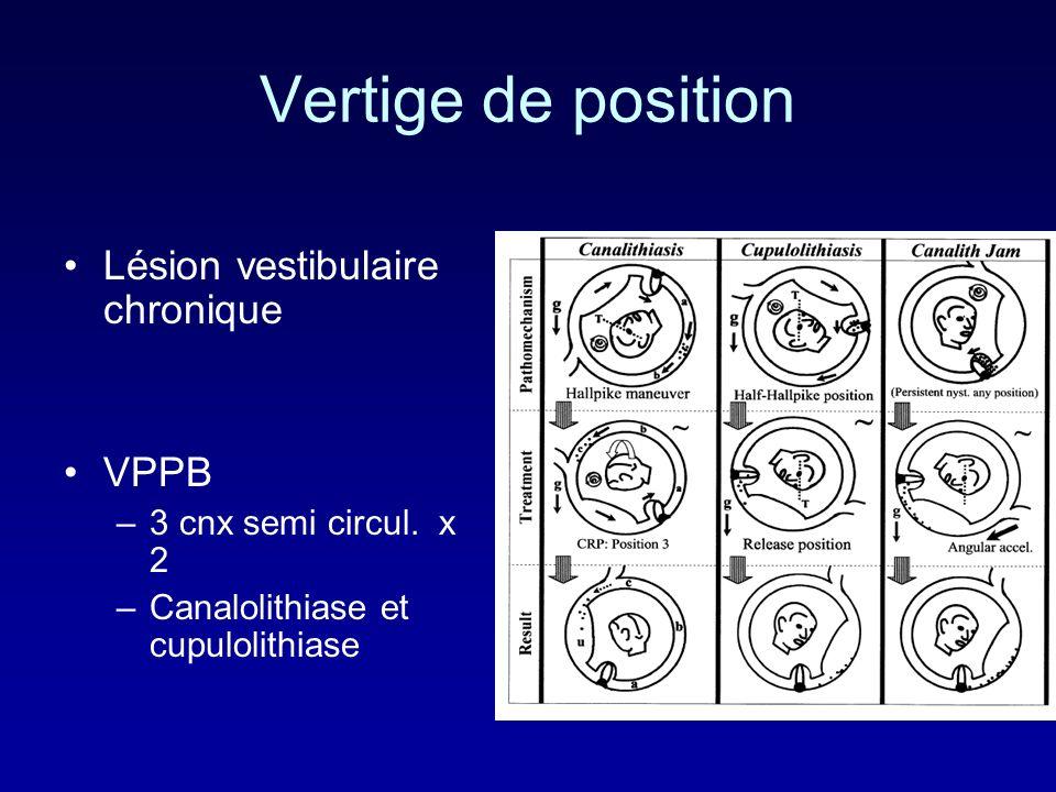 Vertige de position Lésion vestibulaire chronique VPPB