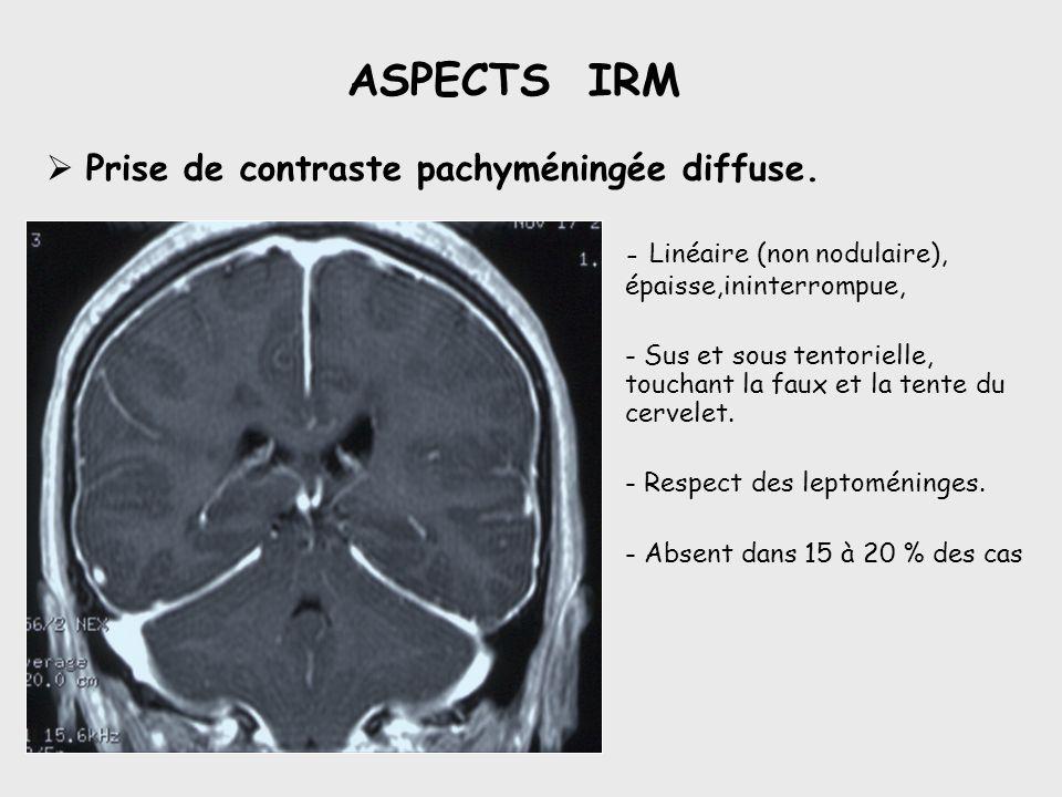 ASPECTS IRM Prise de contraste pachyméningée diffuse.