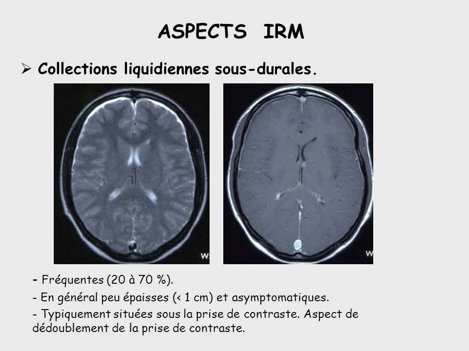 ASPECTS IRM Collections liquidiennes sous-durales.