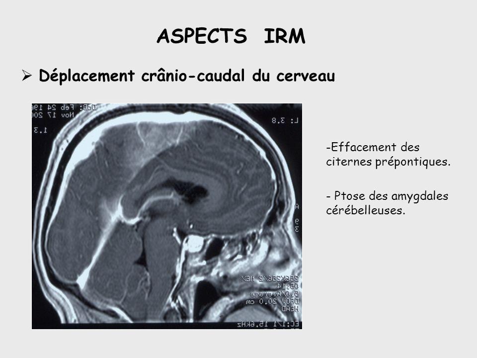 ASPECTS IRM Déplacement crânio-caudal du cerveau