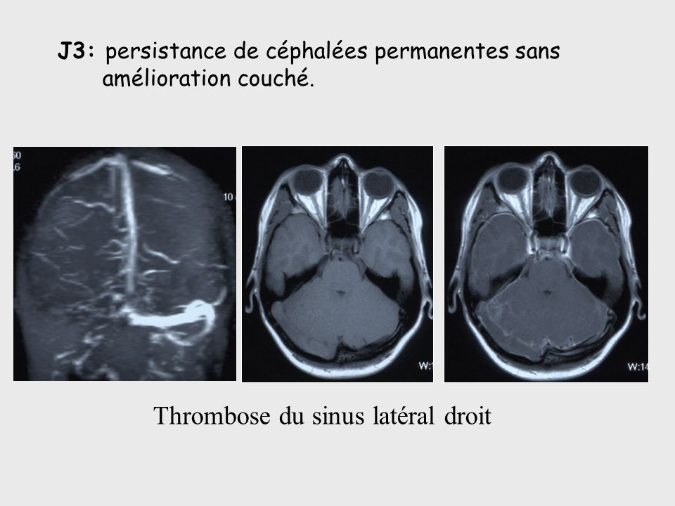 Thrombose du sinus latéral droit