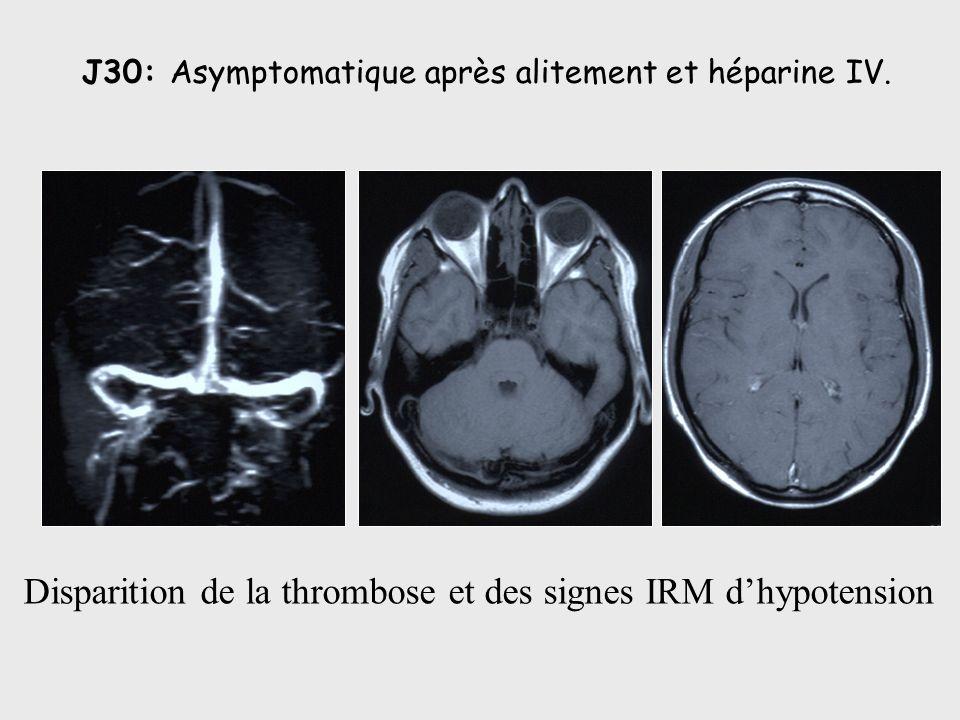 Disparition de la thrombose et des signes IRM d'hypotension