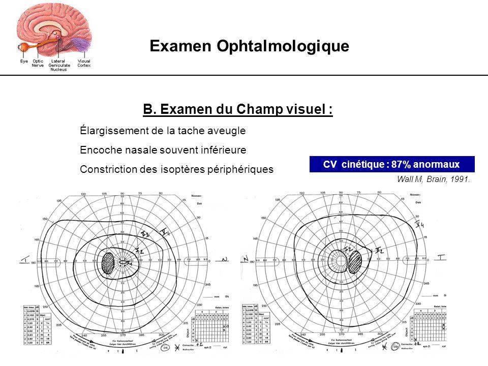 Examen Ophtalmologique CV cinétique : 87% anormaux