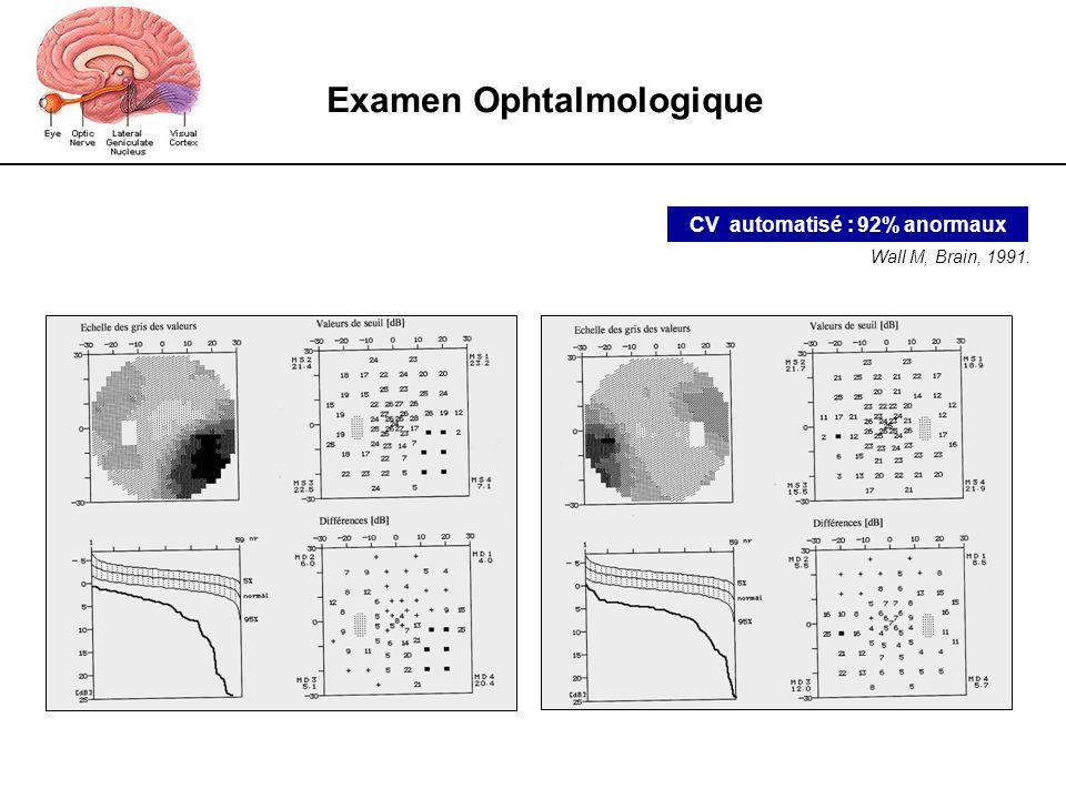 Examen Ophtalmologique CV automatisé : 92% anormaux