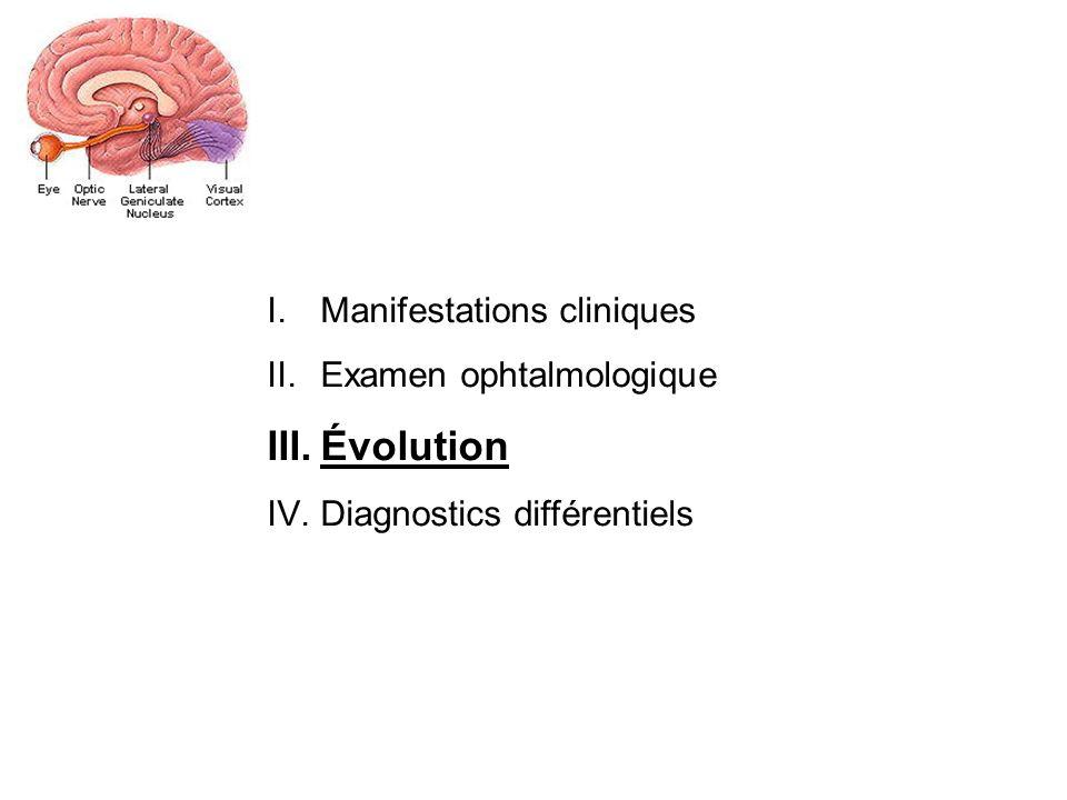 Évolution Manifestations cliniques Examen ophtalmologique