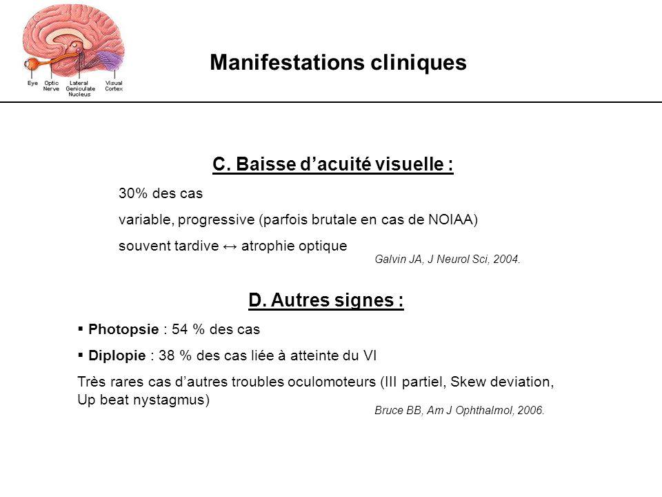 Manifestations cliniques C. Baisse d'acuité visuelle :