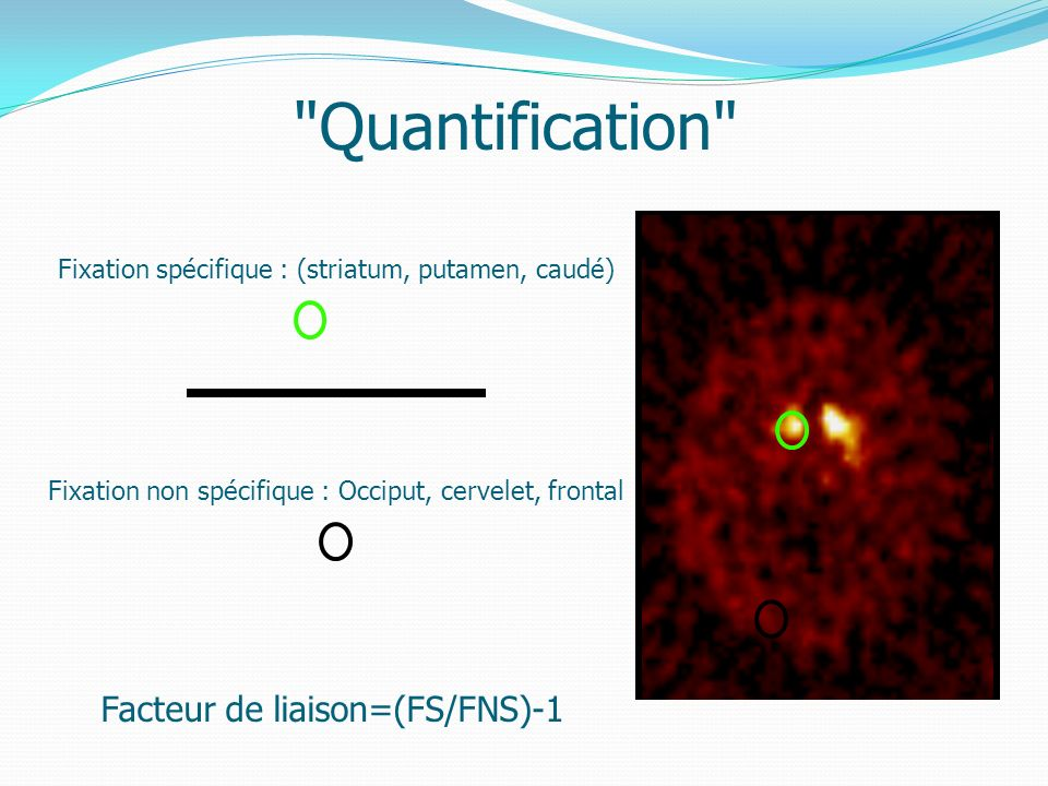 Quantification Facteur de liaison=(FS/FNS)-1