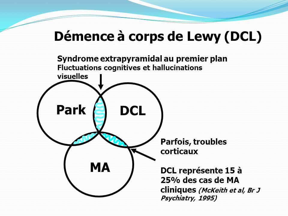 Démence à corps de Lewy (DCL)
