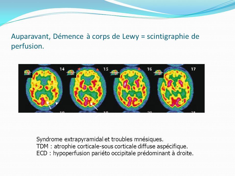 Auparavant, Démence à corps de Lewy = scintigraphie de perfusion.