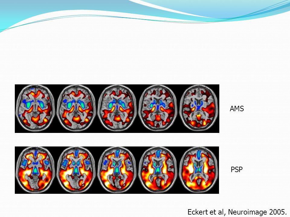 Eckert et al, Neuroimage 2005.