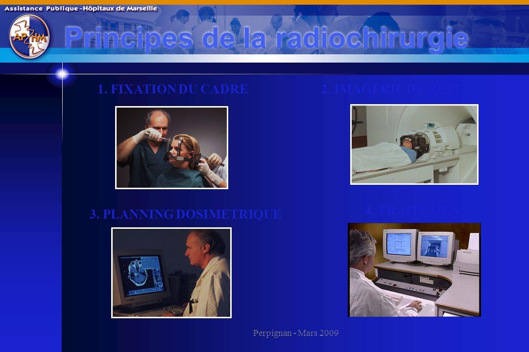 Principes de la radiochirurgie