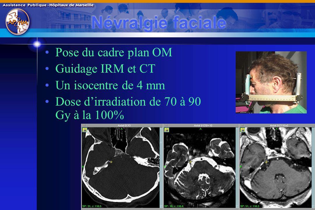 Névralgie faciale Pose du cadre plan OM Guidage IRM et CT