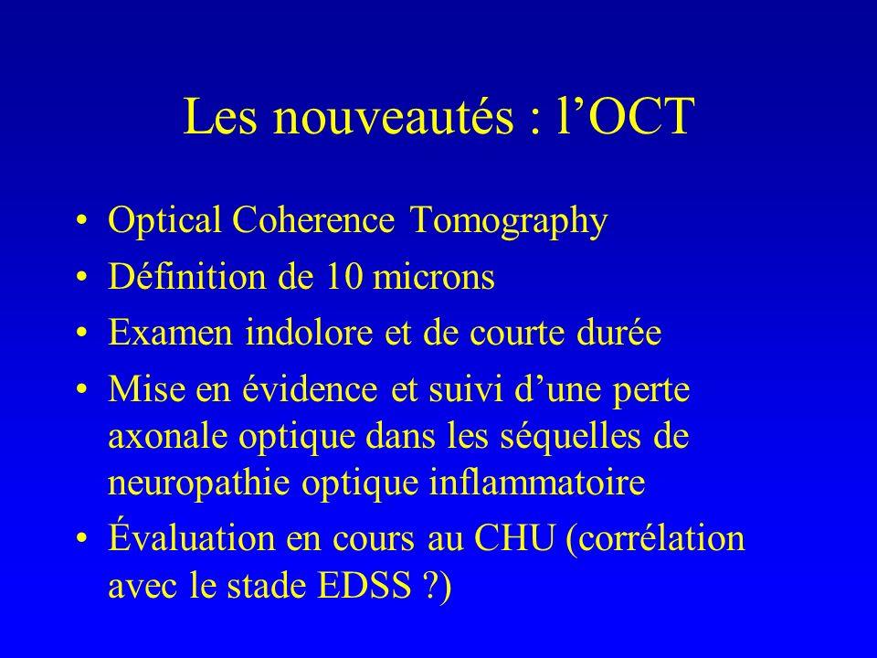 Les nouveautés : l'OCT Optical Coherence Tomography