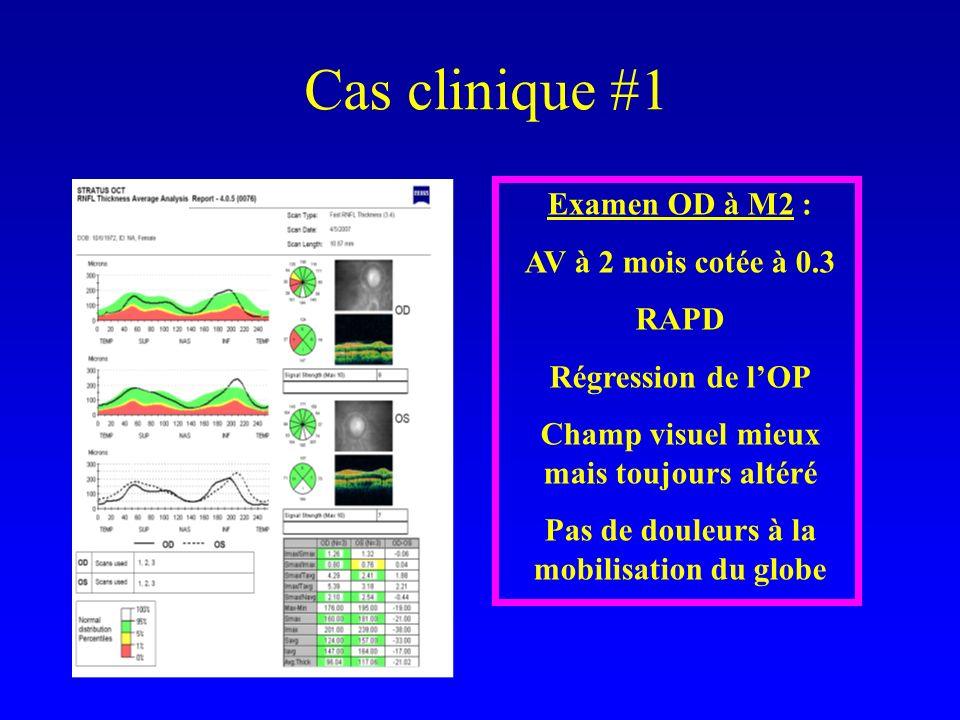 Cas clinique #1 Examen OD à M2 : AV à 2 mois cotée à 0.3 RAPD