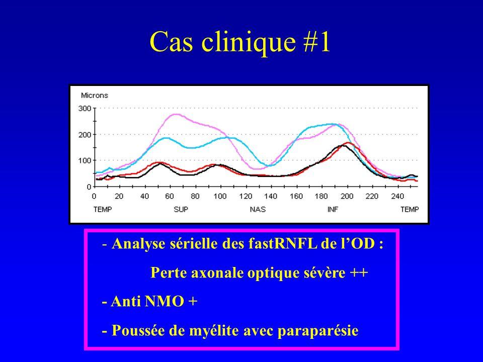 Cas clinique #1 - Analyse sérielle des fastRNFL de l'OD :
