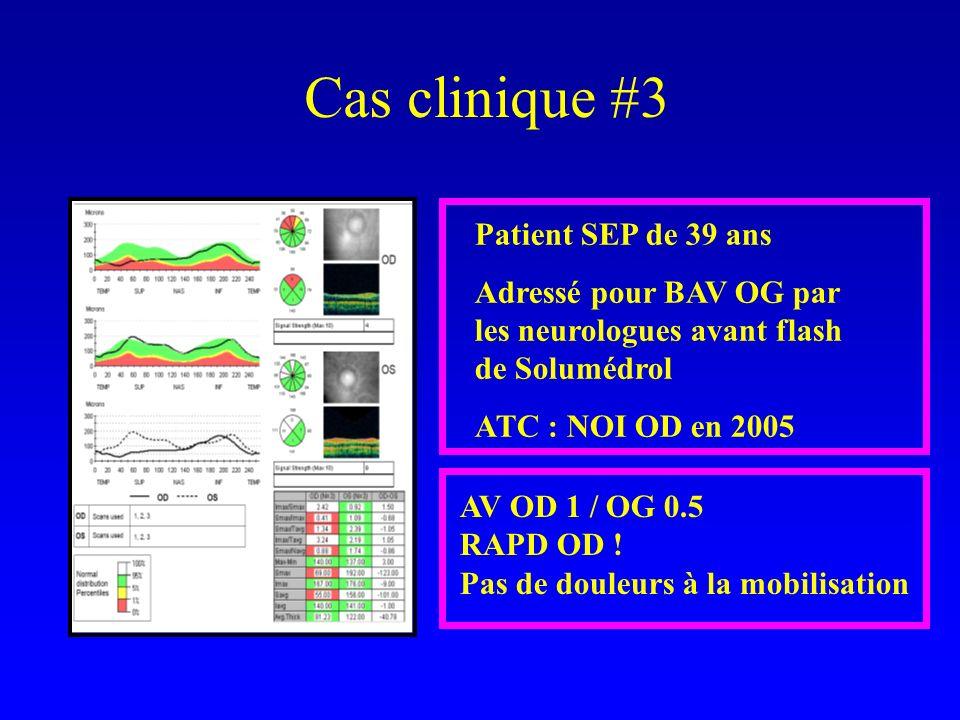 Cas clinique #3 Patient SEP de 39 ans