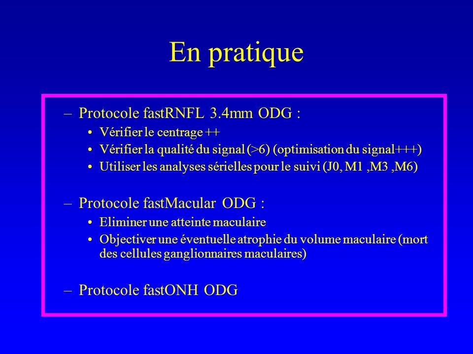 En pratique Protocole fastRNFL 3.4mm ODG : Protocole fastMacular ODG :