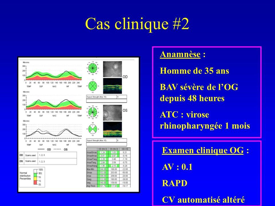 Cas clinique #2 Anamnèse : Homme de 35 ans