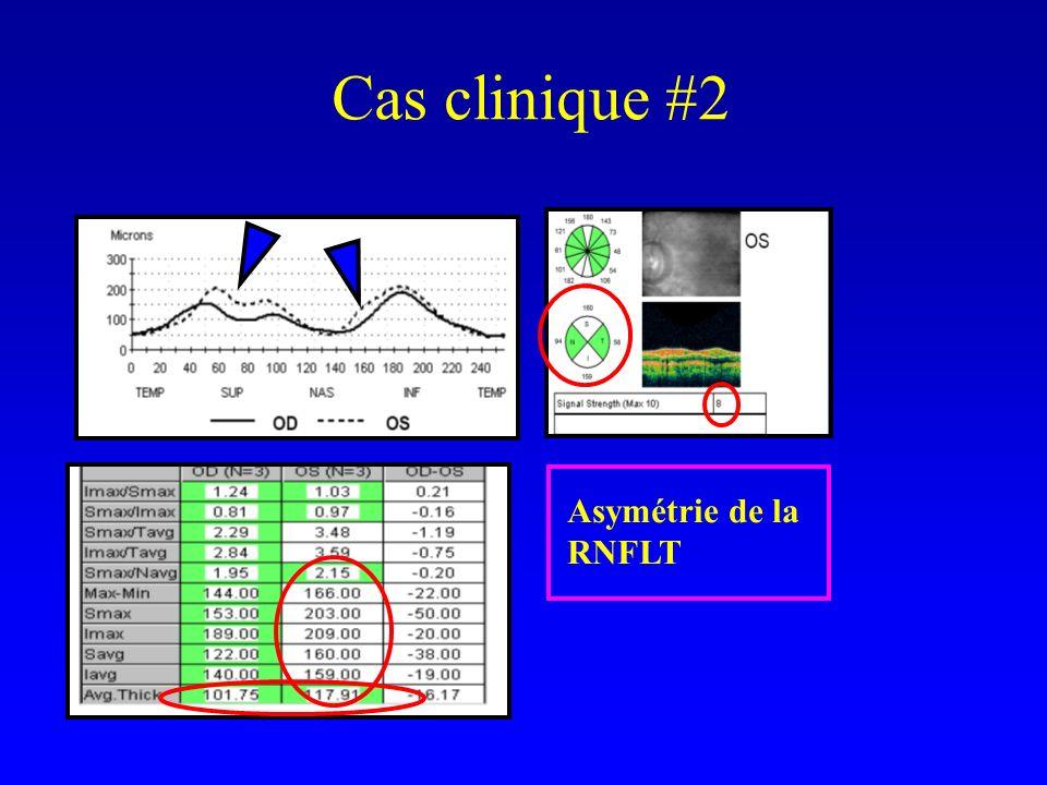 Cas clinique #2 Asymétrie de la RNFLT