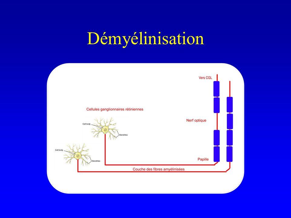 Démyélinisation
