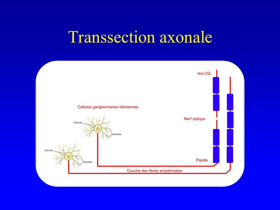 Transsection axonale