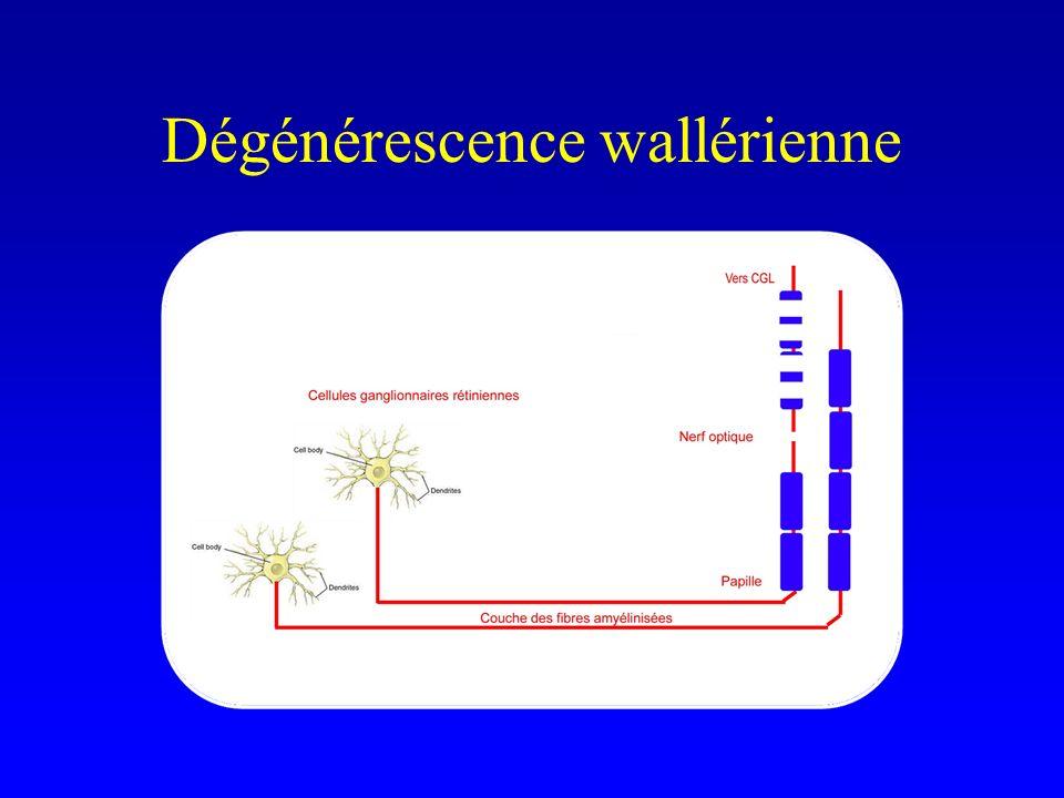 Dégénérescence wallérienne