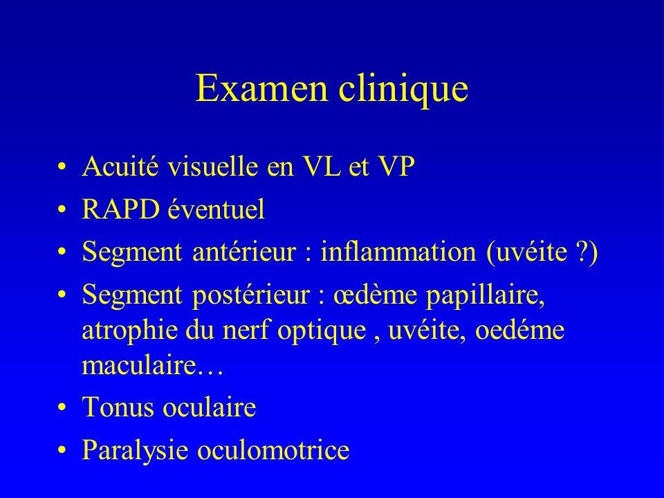 Examen clinique Acuité visuelle en VL et VP RAPD éventuel