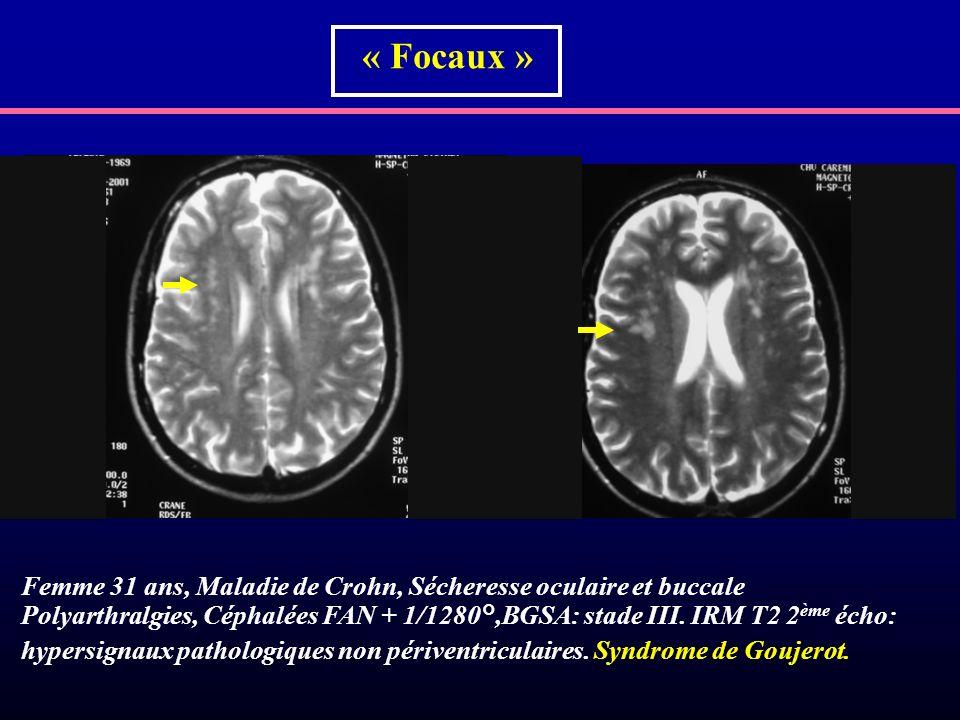 « Focaux »Femme 31 ans, Maladie de Crohn, Sécheresse oculaire et buccale.