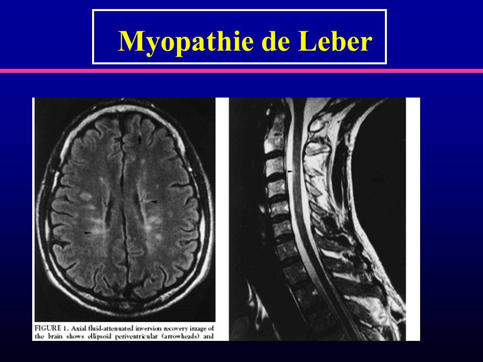Myopathie de Leber