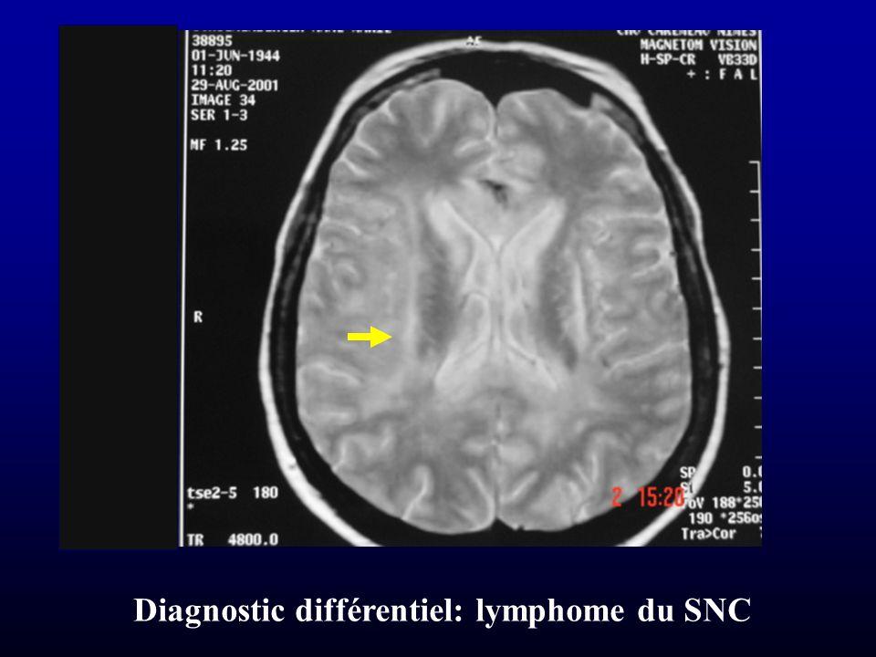 Diagnostic différentiel: lymphome du SNC