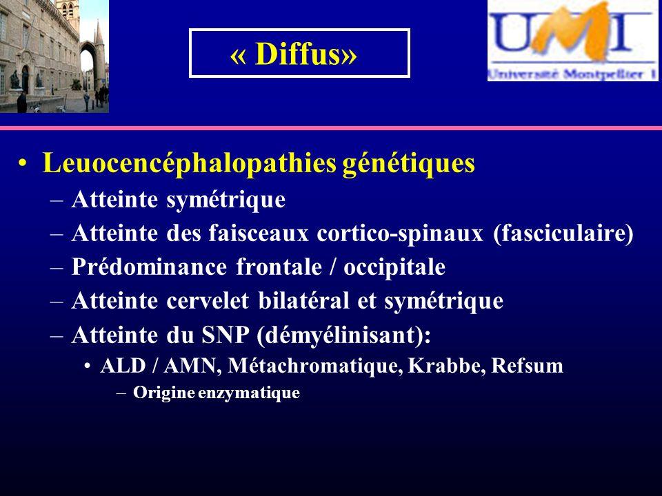 « Diffus» Leuocencéphalopathies génétiques Atteinte symétrique