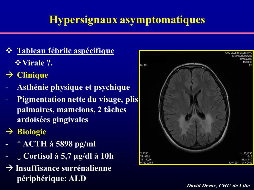 Hypersignaux asymptomatiques