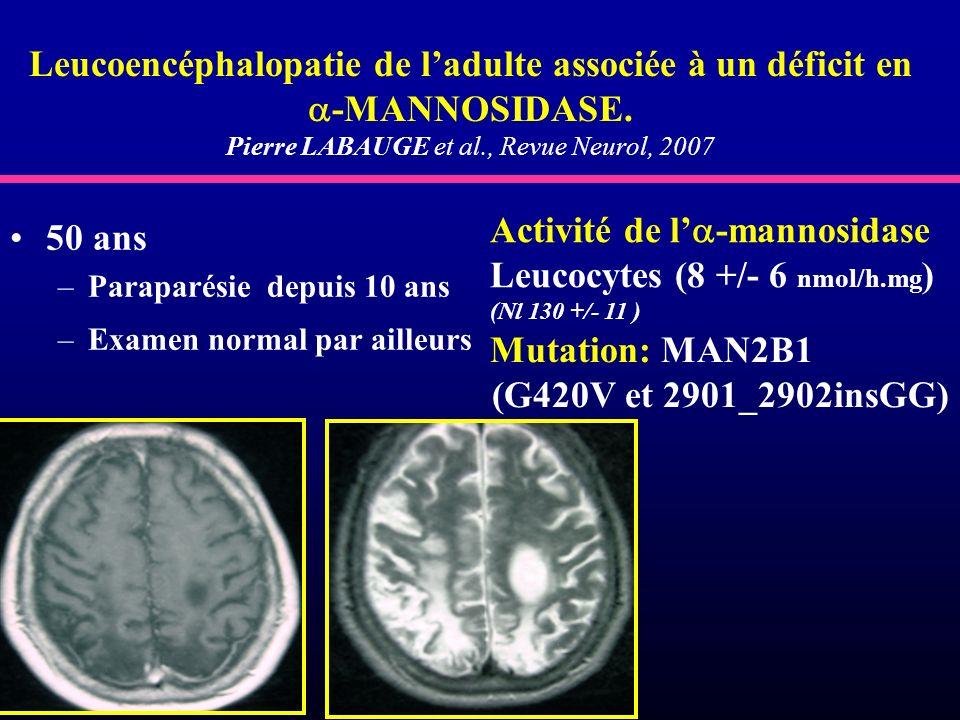 Pierre LABAUGE et al., Revue Neurol, 2007