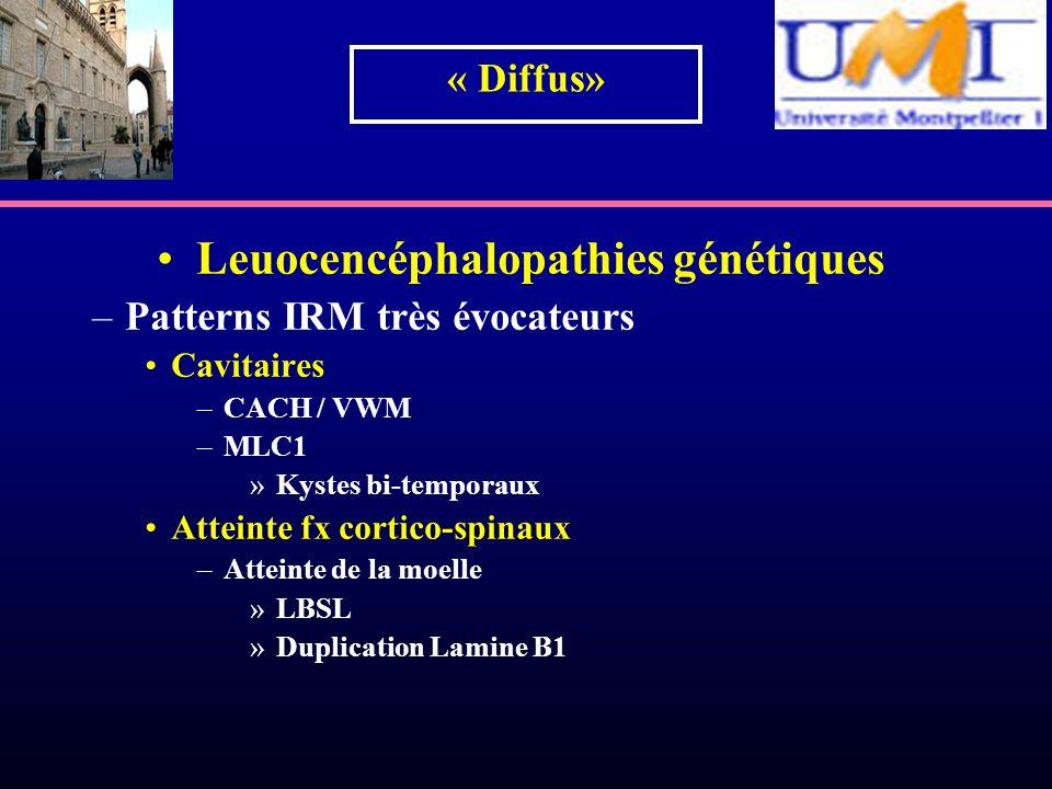 Leuocencéphalopathies génétiques