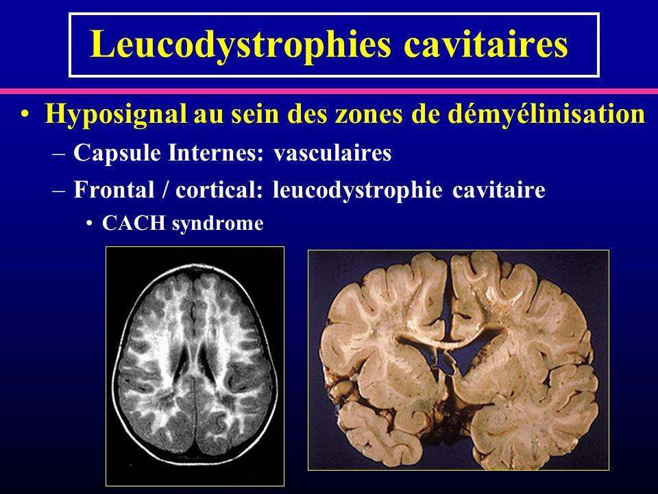 Leucodystrophies cavitaires