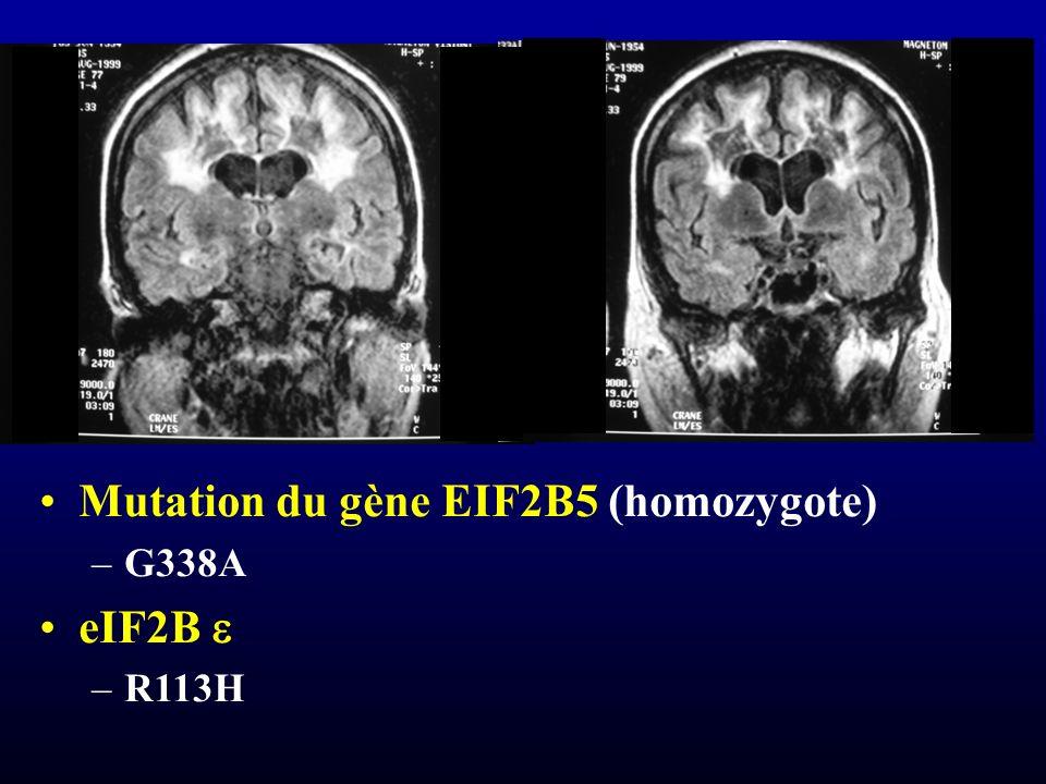 Mutation du gène EIF2B5 (homozygote) eIF2B e