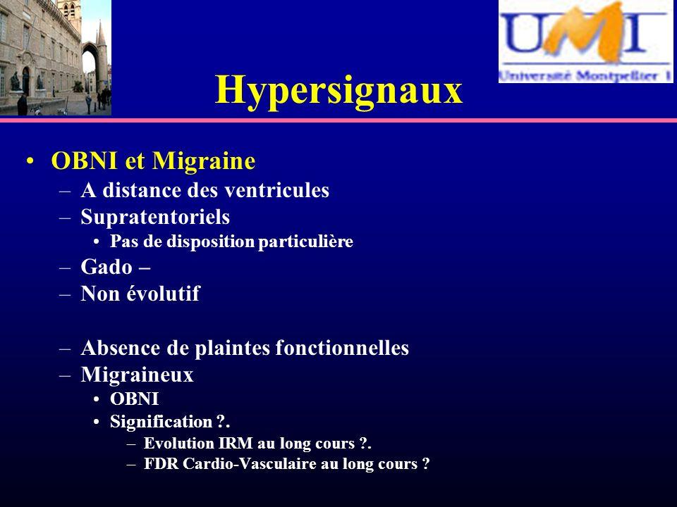 Hypersignaux OBNI et Migraine A distance des ventricules