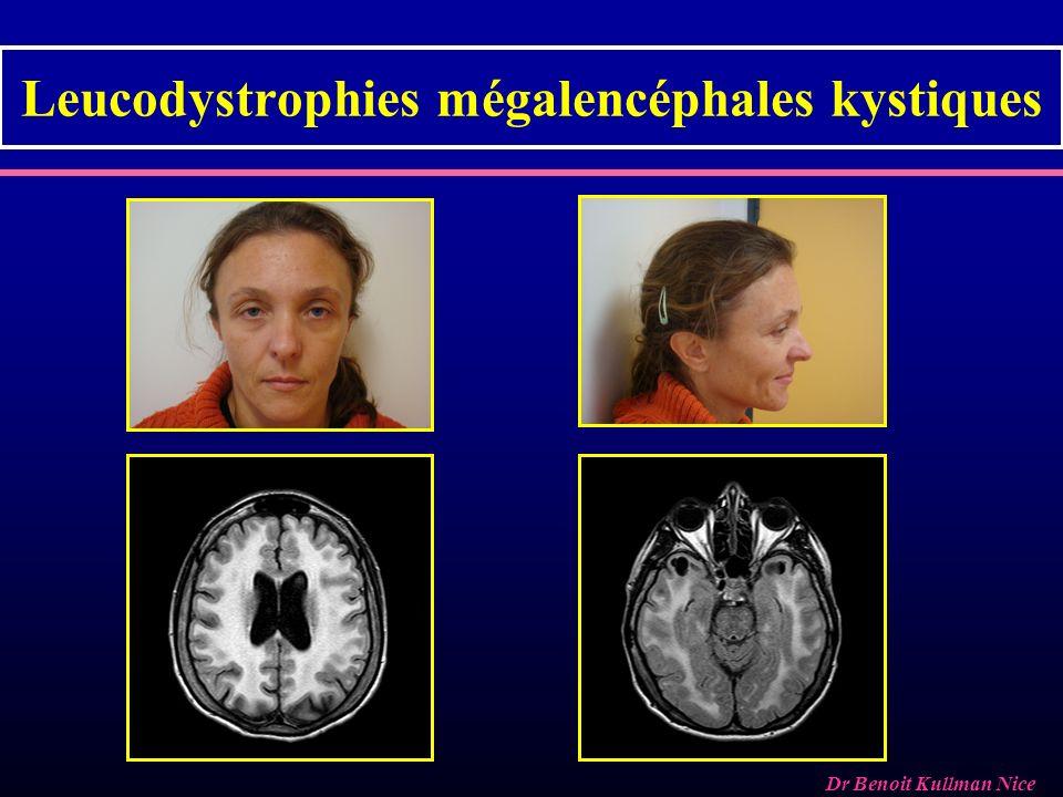 Leucodystrophies mégalencéphales kystiques