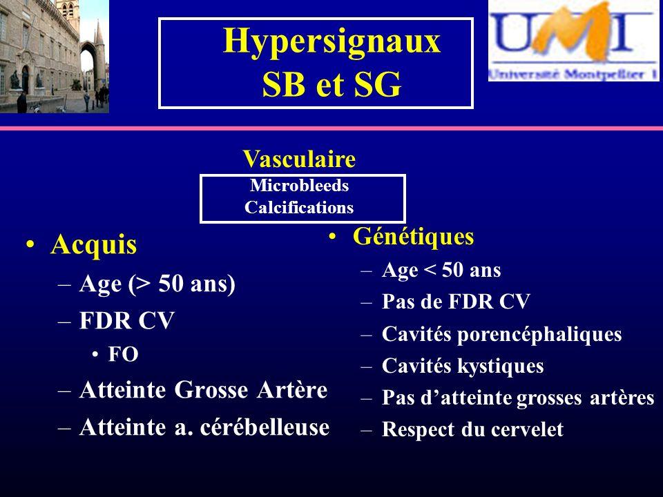 Hypersignaux SB et SG Acquis Vasculaire Génétiques Age (> 50 ans)