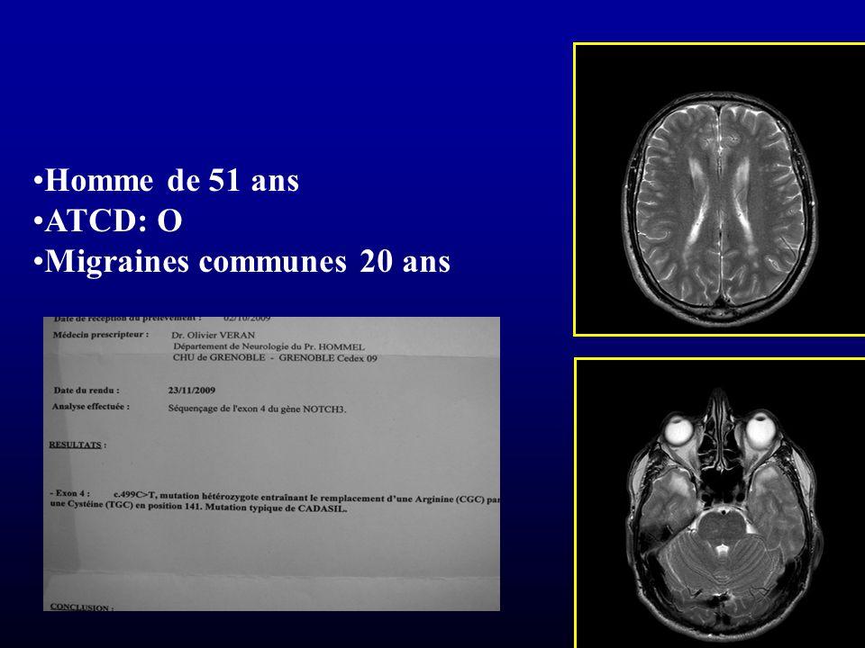 Homme de 51 ans ATCD: O Migraines communes 20 ans