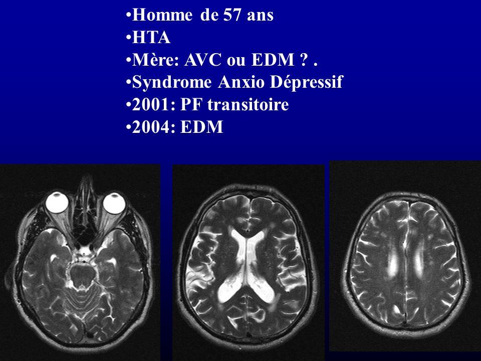 Homme de 57 ans HTA Mère: AVC ou EDM . Syndrome Anxio Dépressif 2001: PF transitoire 2004: EDM