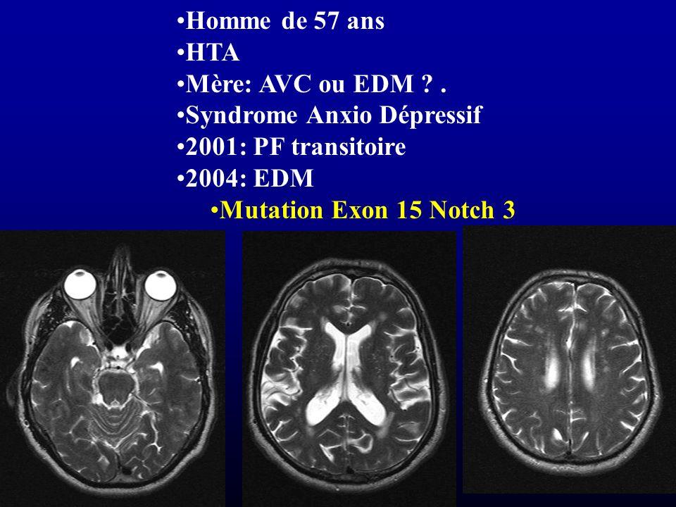 Homme de 57 ans HTA. Mère: AVC ou EDM . Syndrome Anxio Dépressif. 2001: PF transitoire. 2004: EDM.