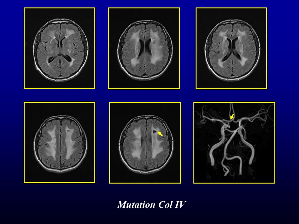 Mutation Col IV