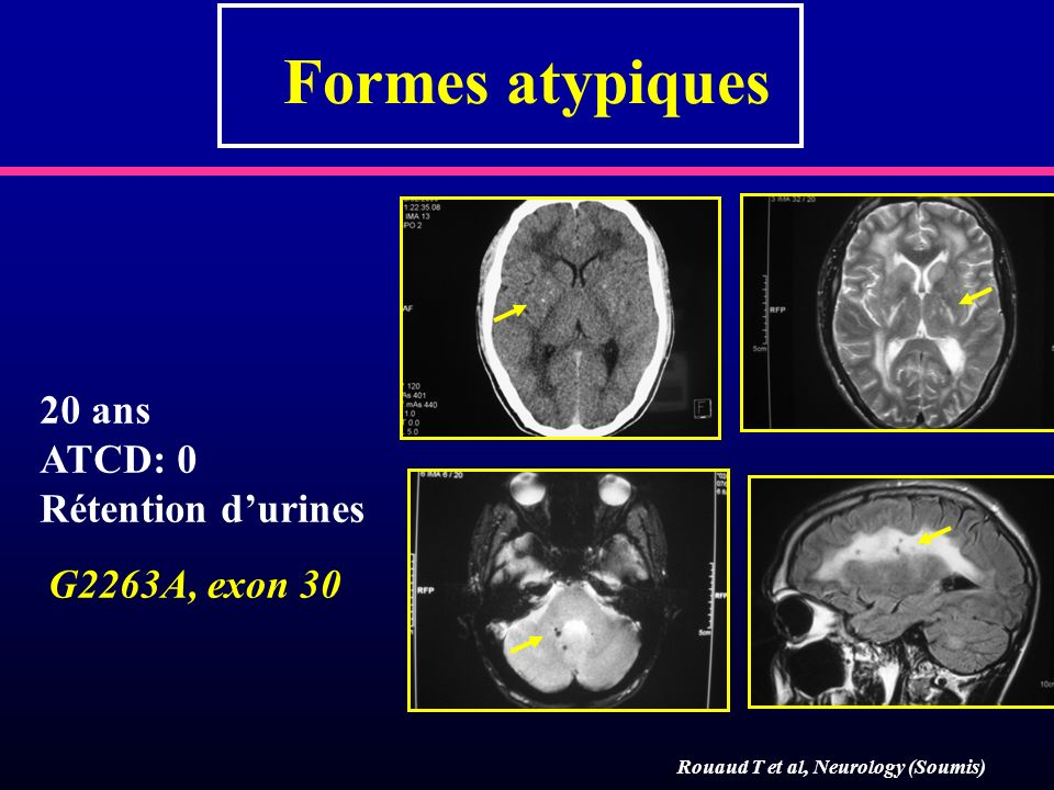 Formes atypiques 20 ans ATCD: 0 Rétention d'urines G2263A, exon 30