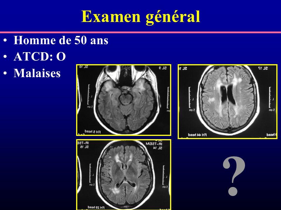 Examen général Homme de 50 ans ATCD: O Malaises