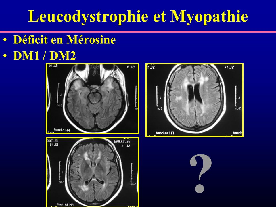 Leucodystrophie et Myopathie