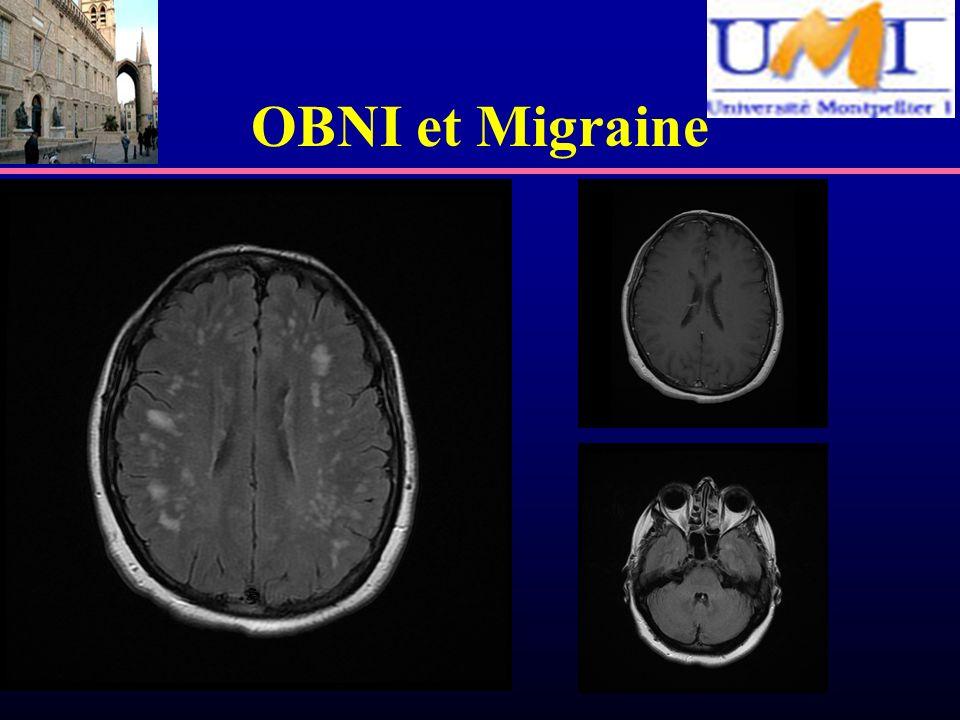 OBNI et Migraine